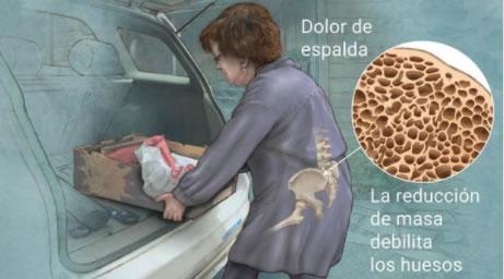 Osteoporosis Dolor de espalda
