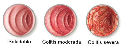 Colitis Normal - Moderada - Severa