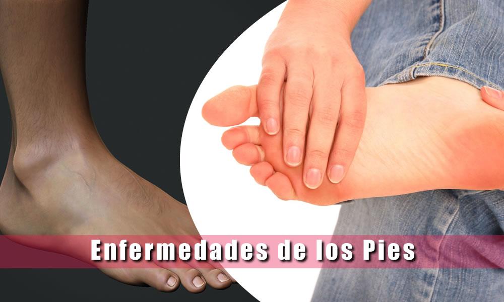 enfermedades de los pies afecciones