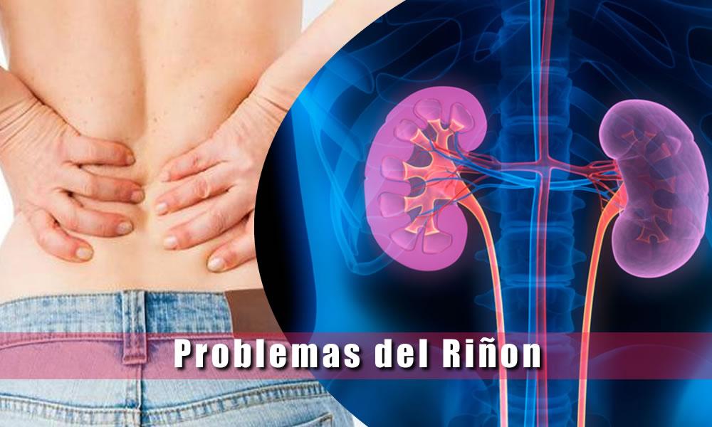 Enfermedades de los riñones - tumores, cálculos, insuficiencia renal ...