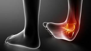 esguince - enfermedades de los pies