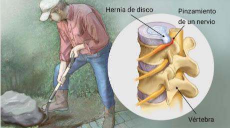 hernia discal dolor de espalda