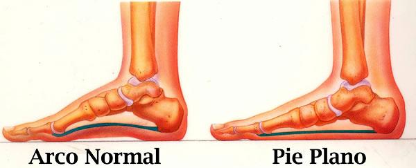 pie plano - enfermedades de los pies
