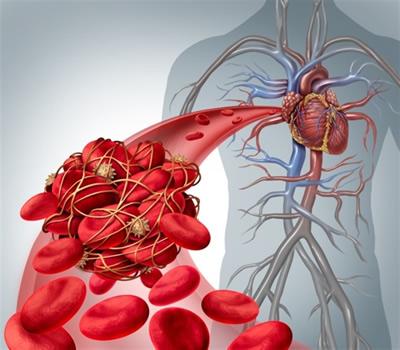 trombosis coronaria o ataque cardiaco